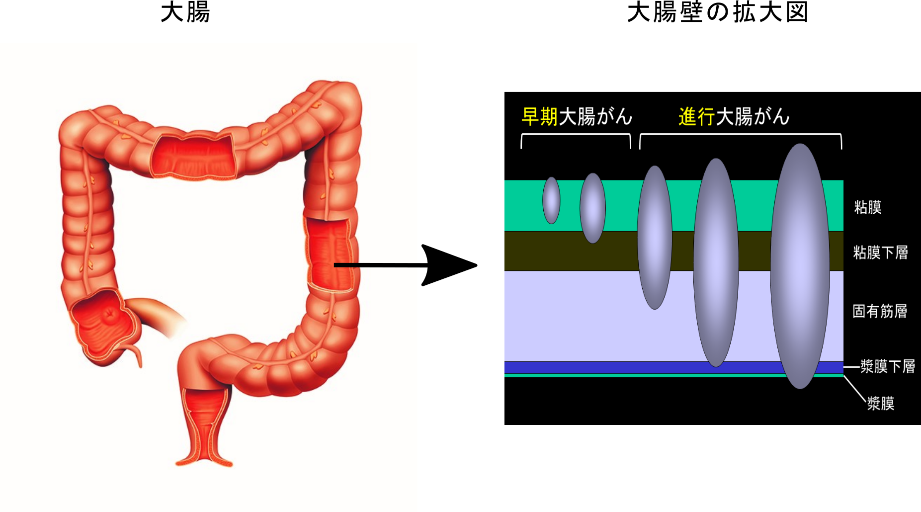 血便=大腸がん?大腸がんの初期症状について。